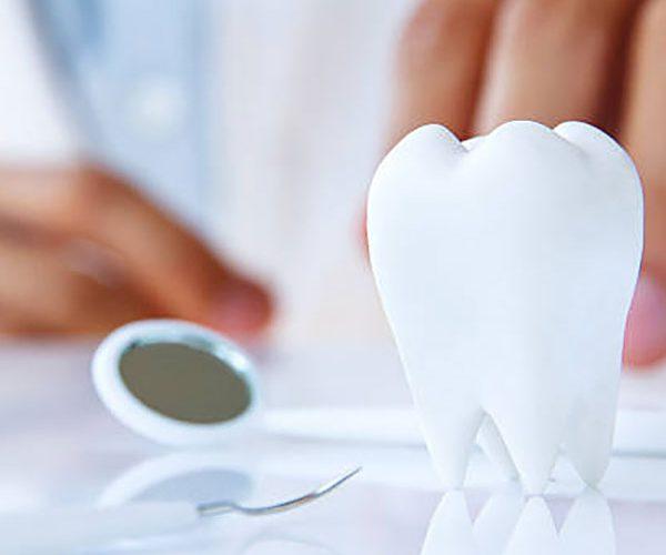 Protesi dentarie a Santa Maria Capua Vetere