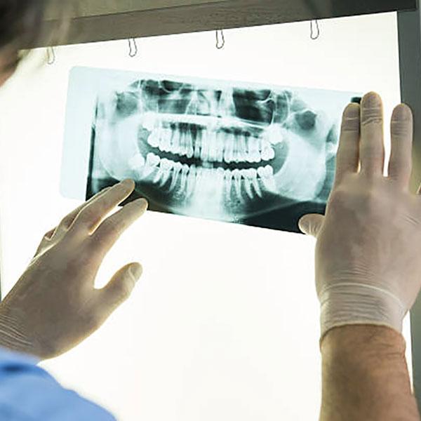 Diagnostica per Immagini - Dentista Santa Mara Capua Vetere