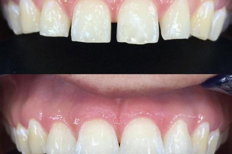 Odontoiatria conservativa 02
