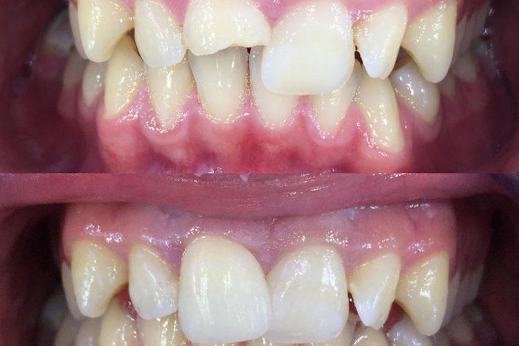 Odontoiatria conservativa 03