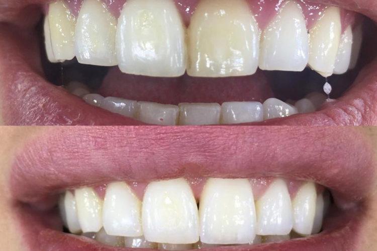 Odontoiatria conservativa 04