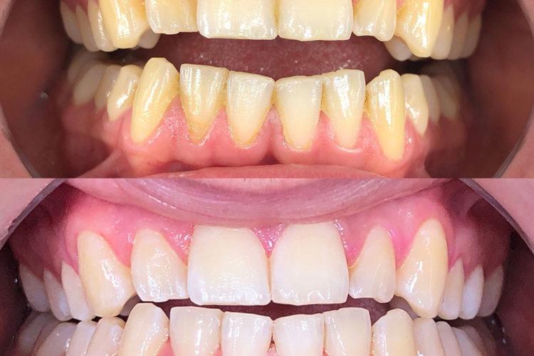 sbiancamento denti 01