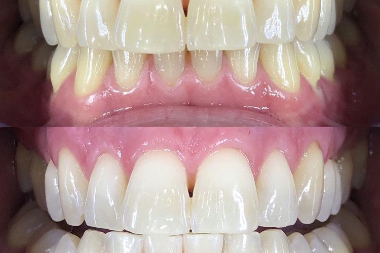 sbiancamento denti 03