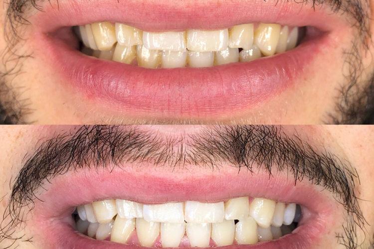 sbiancamento denti 04